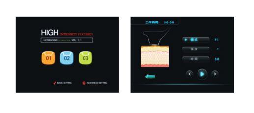 CAV3 キャビスリー 進化型 極超音波 フォーカスソニック