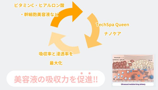 TechSpa Queen テクスパクイーン 世界初「DDU技術 水玉リフティング
